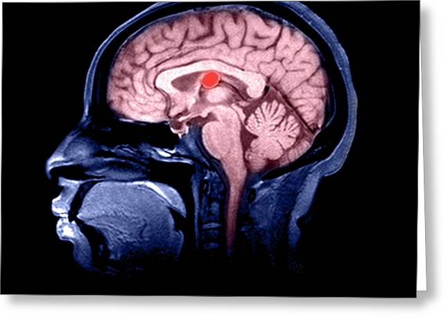Color Enhanced Greeting Cards - Mri Colloid Cyst Of Third Ventricle Greeting Card by Medical Body Scans