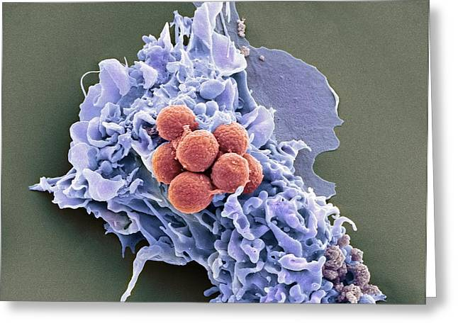 Engulfing Greeting Cards - Phagocytosis Of Fungus Spores, Sem Greeting Card by Prof Matthias Gunzer