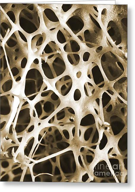 Scanning Electron Micrograph Greeting Cards - Sem Of Human Shin Bone Greeting Card by Science Source