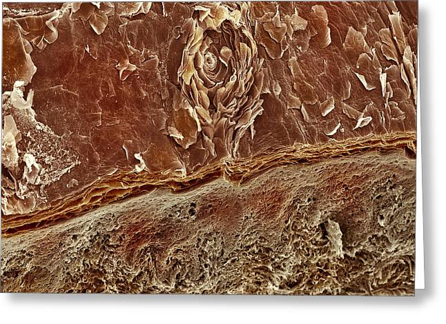 Sweat Greeting Cards - Sweat Pore, Sem Greeting Card by Steve Gschmeissner