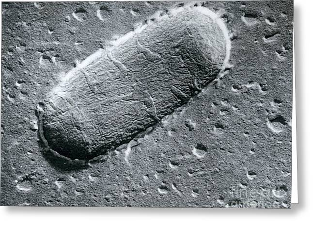 Scanning Electron Micrograph Greeting Cards - Tuberculosis Bacillum Greeting Card by Science Source