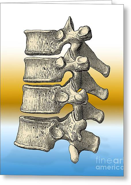 Historical Images Greeting Cards - Vertebrae Greeting Card by Science Source