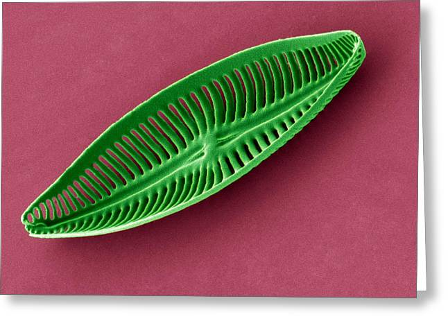 Recently Sold -  - Striae Greeting Cards - Diatom, Sem Greeting Card by Steve Gschmeissner