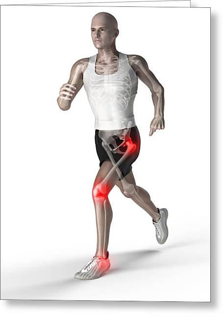 Jogging Greeting Cards - Joint Pain, Conceptual Artwork Greeting Card by Sciepro