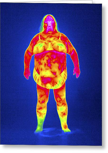Thermography Greeting Cards - Obese Woman, Thermogram Greeting Card by Tony Mcconnell