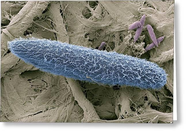 Paramecium Protozoan, Sem Greeting Card by Steve Gschmeissner