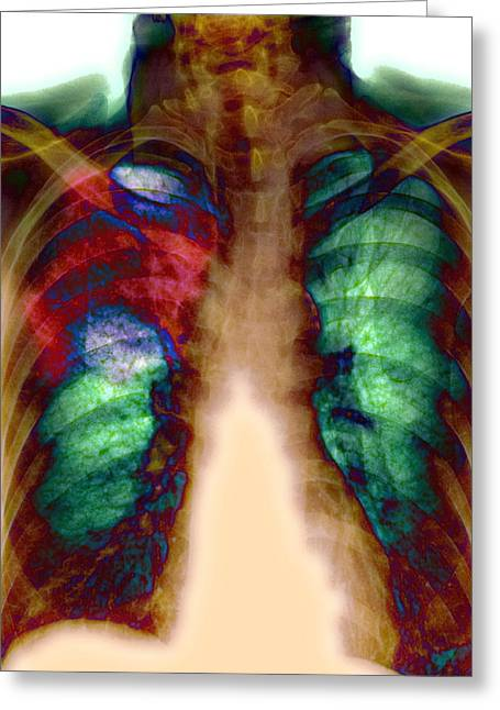 Consolidation Greeting Cards - Pneumonia, X-ray Greeting Card by Du Cane Medical Imaging Ltd