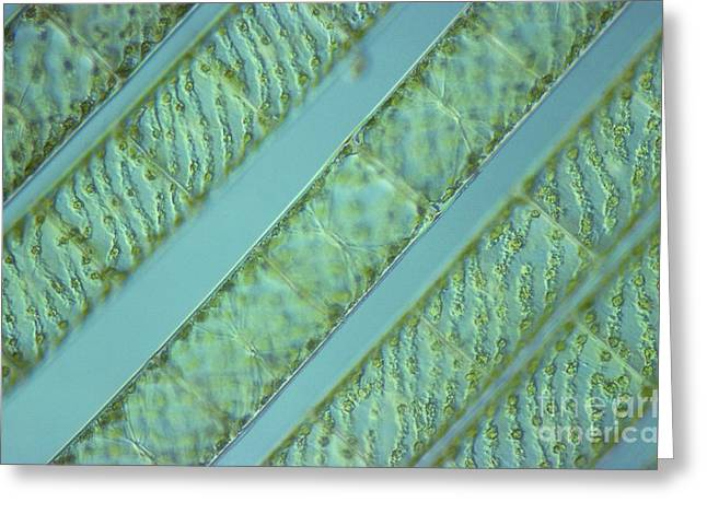 Zygnematophyceae Greeting Cards - Spirogyra Sp. Algae Lm Greeting Card by M. I. Walker
