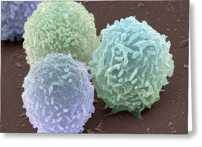 Component Greeting Cards - White Blood Cells, Sem Greeting Card by Steve Gschmeissner