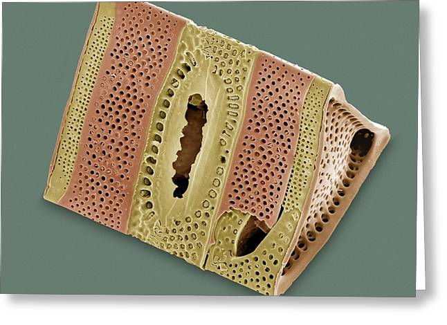 Photosynthetic Greeting Cards - Diatom, Sem Greeting Card by Steve Gschmeissner