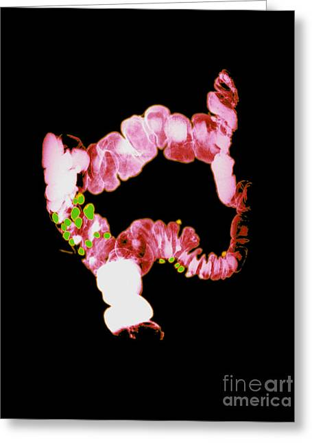 Rectum Greeting Cards - Barium Enema Showing Diverticulosis Greeting Card by Medical Body Scans