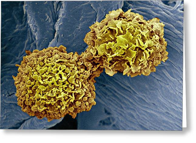Conditions Greeting Cards - Breast Cancer Cells, Sem Greeting Card by Steve Gschmeissner