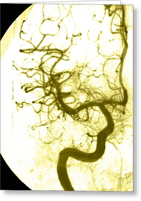 Angiogram Greeting Cards - Cerebral Angiogram Greeting Card by Medical Body Scans