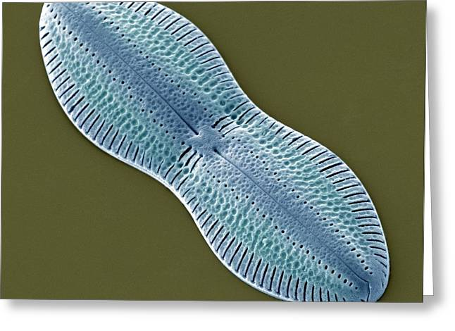 Frustule Greeting Cards - Diatom, Sem Greeting Card by Steve Gschmeissner