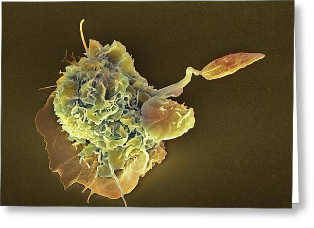 Unicellular Greeting Cards - Macrophage Attacking A Foreign Body, Sem Greeting Card by
