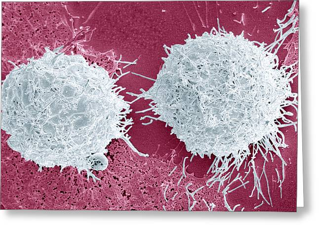 Asexual Greeting Cards - Mitosis, Sem Greeting Card by Steve Gschmeissner