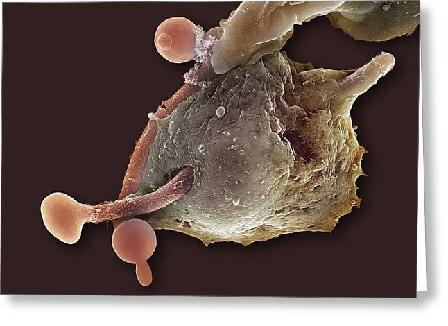 Engulfing Greeting Cards - Neutrophil Engulfing Thrush Fungus, Sem Greeting Card by