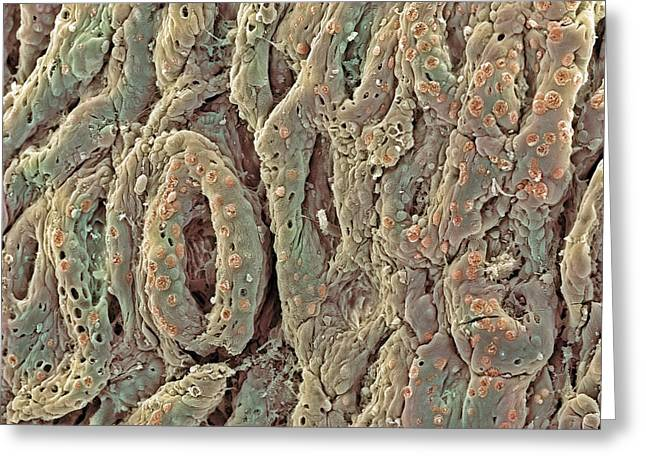 Goblet Greeting Cards - Ulcerative Colitis, Sem Greeting Card by Steve Gschmeissner