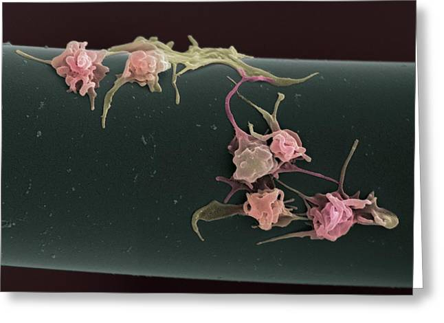 Platelet Greeting Cards - Activated Platelets, Sem Greeting Card by Steve Gschmeissner