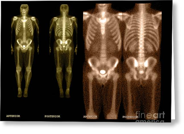 Diagnose Greeting Cards - Bone Scan Greeting Card by Medical Body Scans