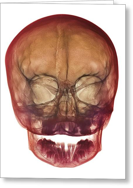 Milk Teeth Greeting Cards - Childs Skull Greeting Card by D. Roberts