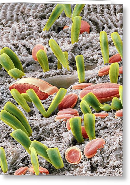 Unicellular Greeting Cards - Diatoms, Sem Greeting Card by Steve Gschmeissner
