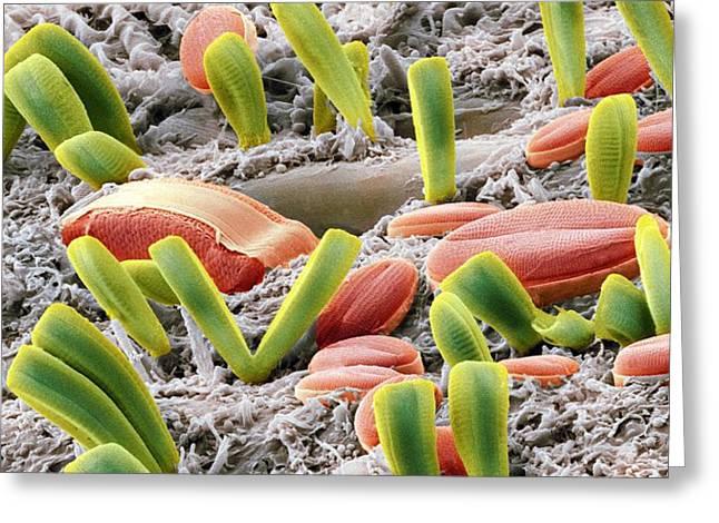 Diatoms, Sem Greeting Card by Steve Gschmeissner