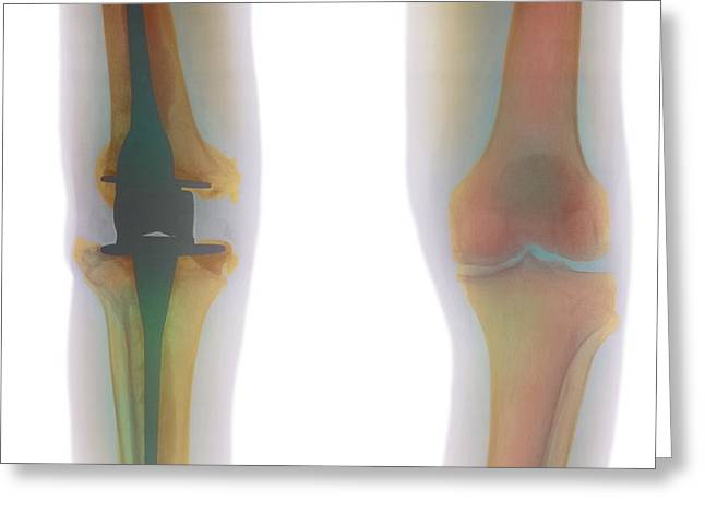 Replacing Greeting Cards - Knee Replacement, X-ray Greeting Card by