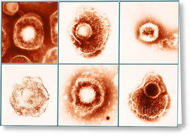 Type 1 Greeting Cards - Various Forms Of Herpes Simplex Virus Greeting Card by Science Source