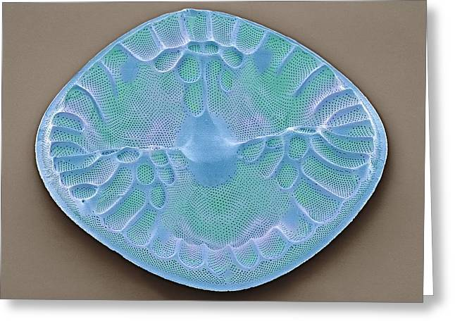 Single-celled Greeting Cards - Diatom, Sem Greeting Card by Steve Gschmeissner