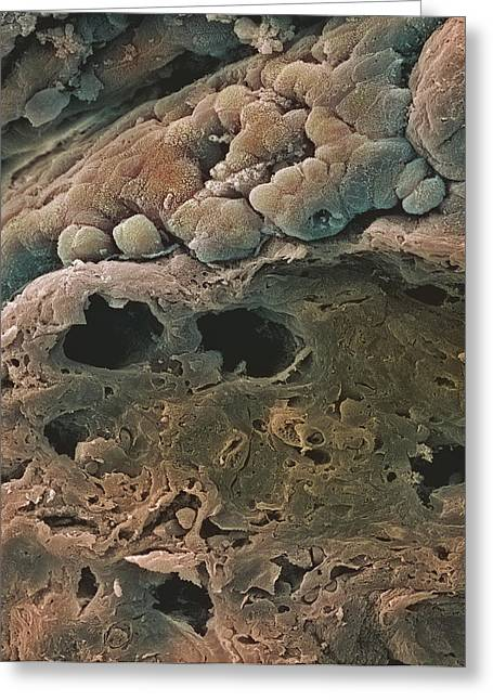 Mucosa Greeting Cards - Colon Cancer, Sem Greeting Card by Steve Gschmeissner