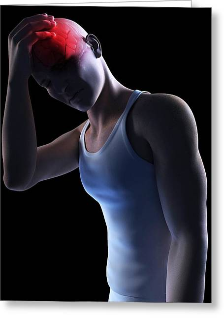 Hand On Head Greeting Cards - Headache, Conceptual Artwork Greeting Card by Sciepro