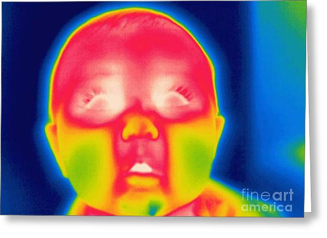 Thermogram Greeting Cards - A Thermogram Of A 5 Month Old Baby Greeting Card by Ted Kinsman