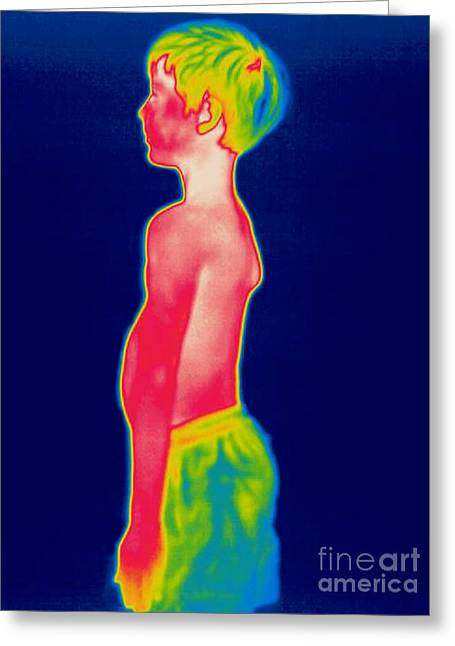 Thermogram Greeting Cards - A Thermogram Of A Boy In Shorts Profile Greeting Card by Ted Kinsman