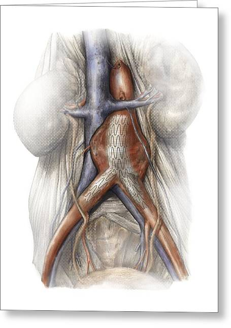Weak Disorder Greeting Cards - Abdominal Aortic Aneurysm, Artwork Greeting Card by D & L Graphics