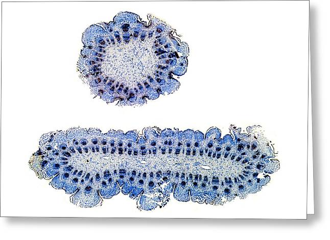 Monstrosity Greeting Cards - Abnormal Thistle Stem, Light Micrograph Greeting Card by Dr Keith Wheeler
