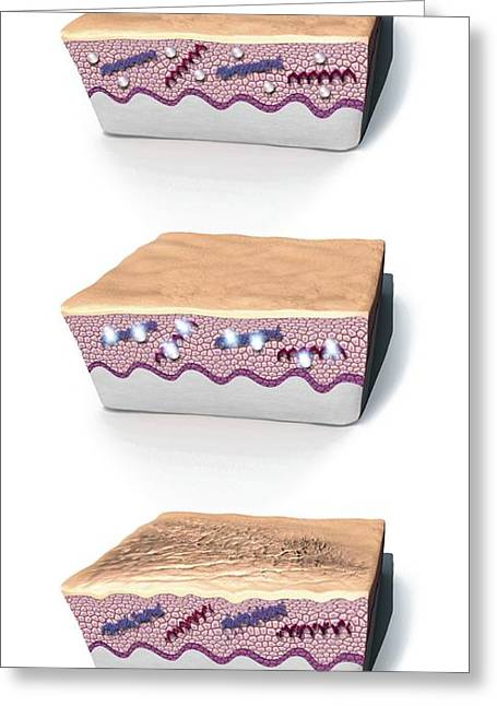 Dermatological Greeting Cards - Ageing Skin, Artwork Greeting Card by Mikkel Juul Jensen