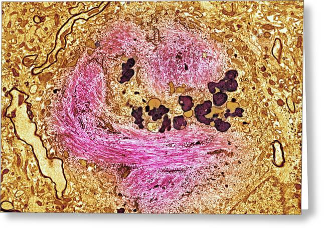 Mental Condition Greeting Cards - Alzheimers Disease Brain Cell, Tem Greeting Card by Thomas Deerinck, Ncmir