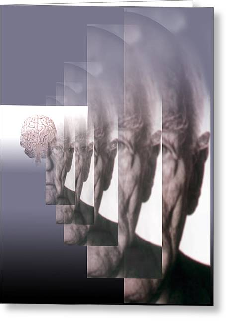 Mental Condition Greeting Cards - Alzheimers Disease Greeting Card by Hans-ulrich Osterwalder