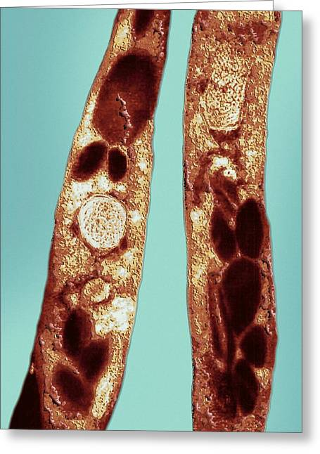 Bacillus Anthracis Greeting Cards - Anthrax Bacteria, Tem Greeting Card by Ami Images