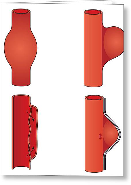 Weak Disorder Greeting Cards - Aortic Aneurysm, Artwork Greeting Card by Peter Gardiner