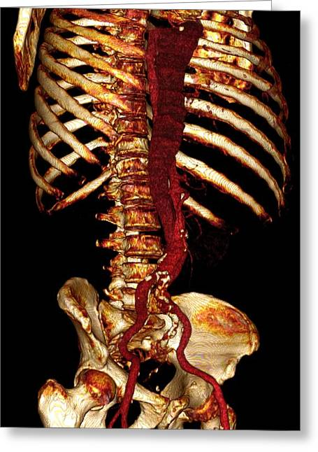 Aorta Greeting Cards - Aortic Dissection, 3d Ct Scan Greeting Card by Du Cane Medical Imaging Ltd
