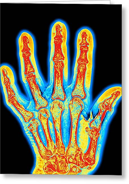 Arthritic Greeting Cards - Arthritic Hand Bones Greeting Card by Pasieka