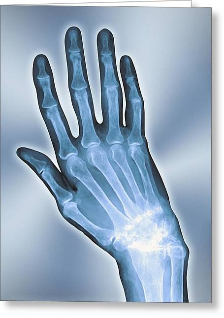 Arthritic Greeting Cards - Arthritic Hand, X-ray Greeting Card by Miriam Maslo