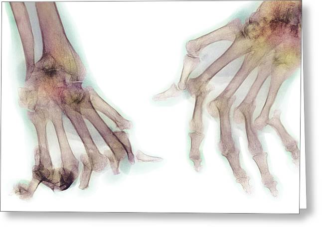 Arthritic Greeting Cards - Arthritic Hands, X-ray Greeting Card by Cnri