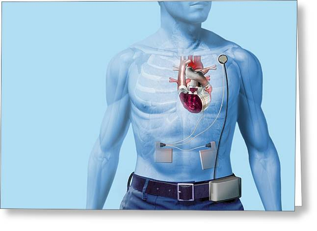 Replacing Greeting Cards - Artificial Heart, Artwork Greeting Card by Henning Dalhoff
