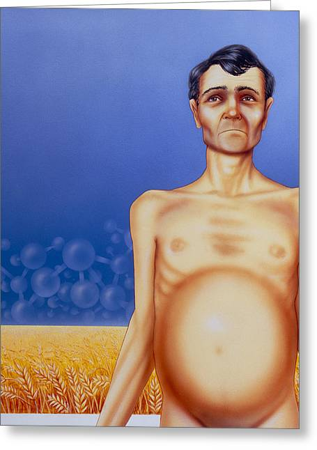 Starvation Greeting Cards - Artists Depiction Of Coeliac Disease Greeting Card by David Gifford