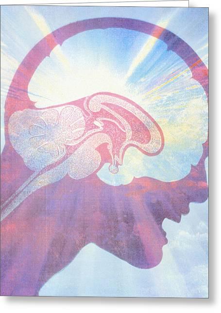Headache Greeting Cards - Artwork Of Brain Over Face Of Man With Headache Greeting Card by Hans-ulrich Osterwalder