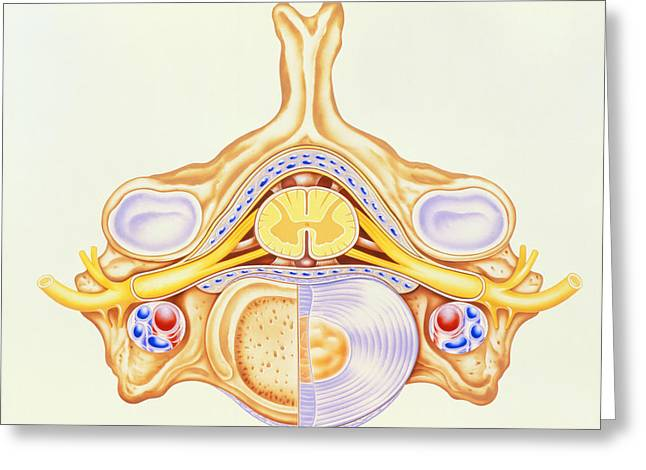 Cervical Vertebrae Greeting Cards - Artwork Of Cervical Vertebra From Human Spine Greeting Card by John Bavosi