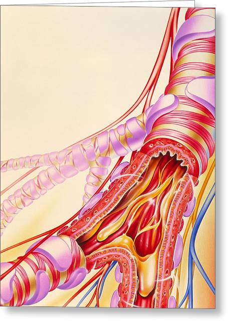 Bronchi Greeting Cards - Artwork Of Chronic Obstructive Pulmonary Disease Greeting Card by John Bavosi